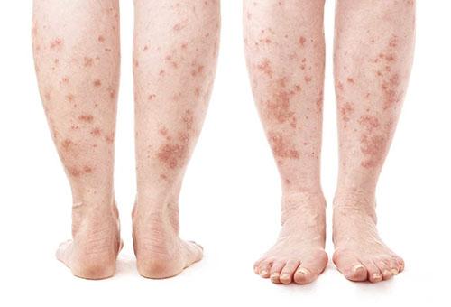 pecsét és piros folt jelent meg a lábán melyektől a tenyéren vörös foltok és a bőr hámlása