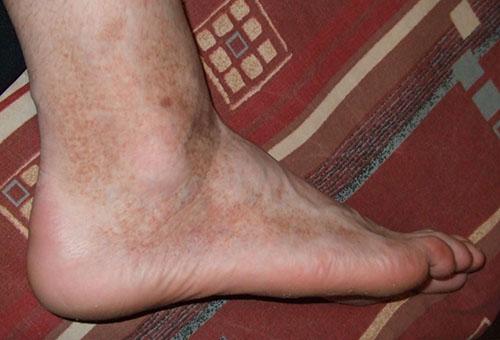 növekvő vörös nagy folt a lábán