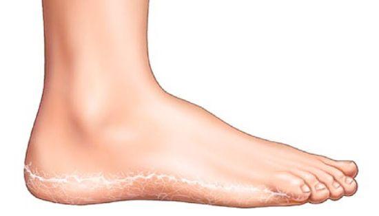 a lábakon vörös foltok viszketnek és pelyhesednek, mint kezelni)