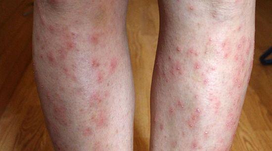 pecsét és piros folt jelent meg a lábán vörös foltok a térd alatt viszketnek